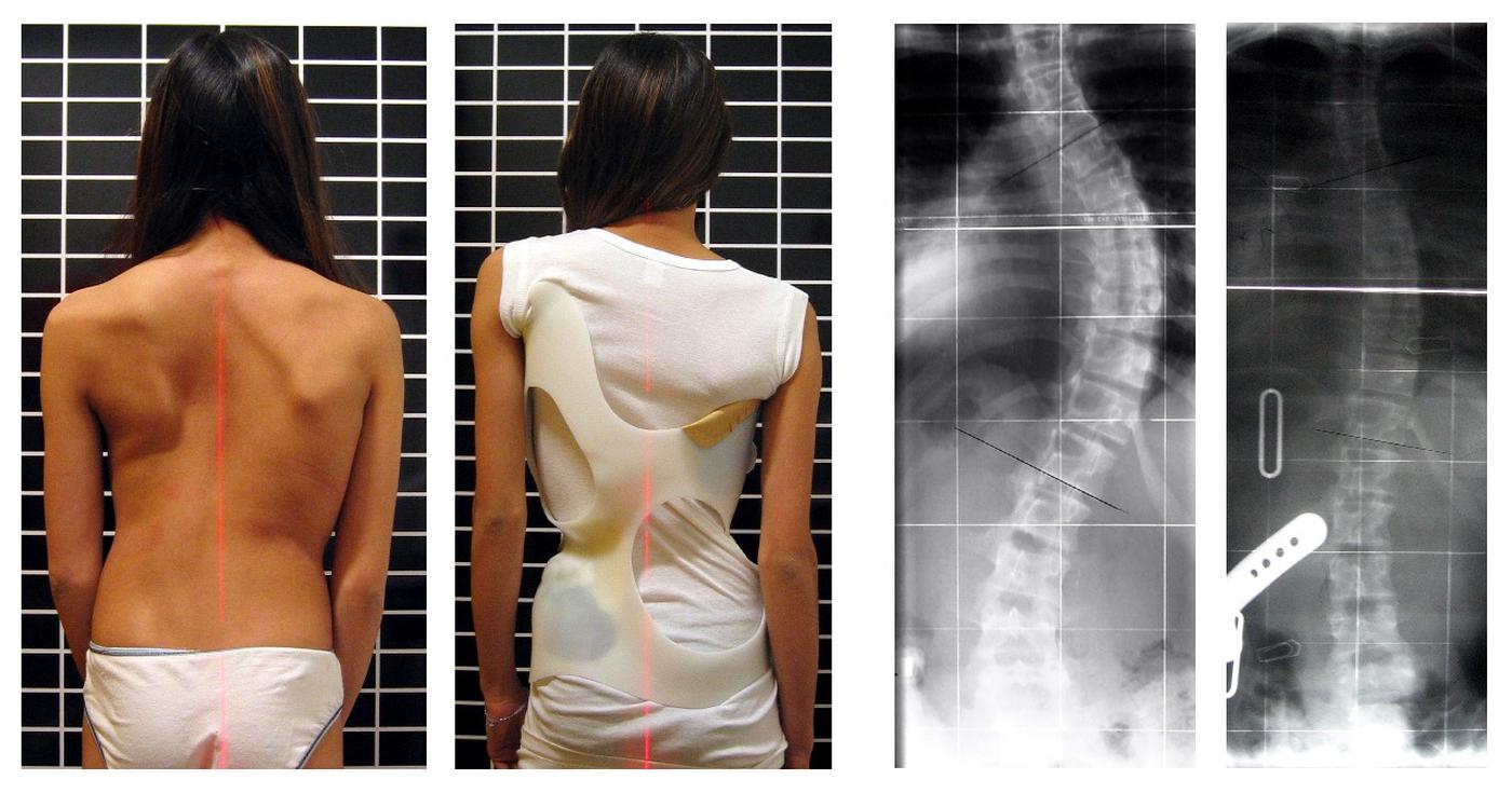 Escoliosis del adolescente y su tratamiento mediante fisioterapia, osteopatía y Pilates