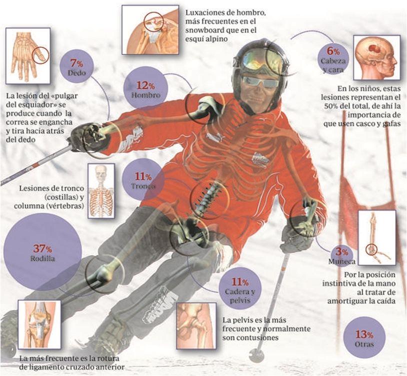 La Temporada de Esquí, La Rodilla sus lesiones y su tratamiento mediante fisioterapia, osteopatía y Pilates