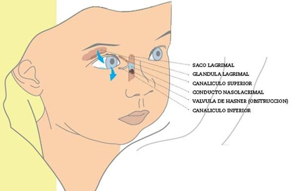 Obstrucción del canal nasolagrimal en bebés actualfisio valdemoro