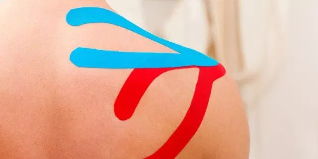 fisioterapia kinesio taping
